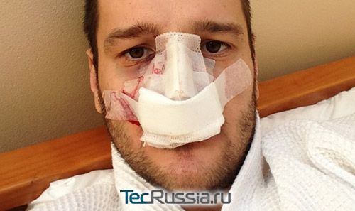 Алексей Самсонов – фото до и после операции на носу